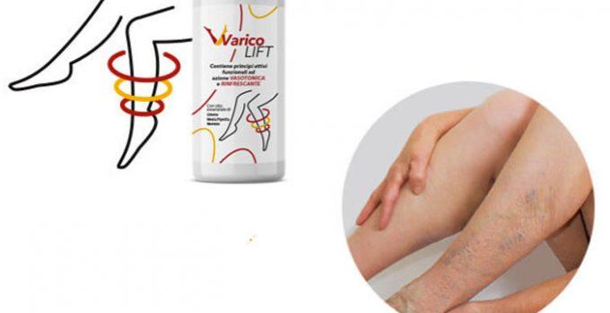 Varicolift, trattamento per le vene varicose: Funziona davvero? Recensione, opinioni e prezzo